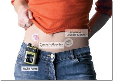 CombinedGlucoseMonitorInsulinPump